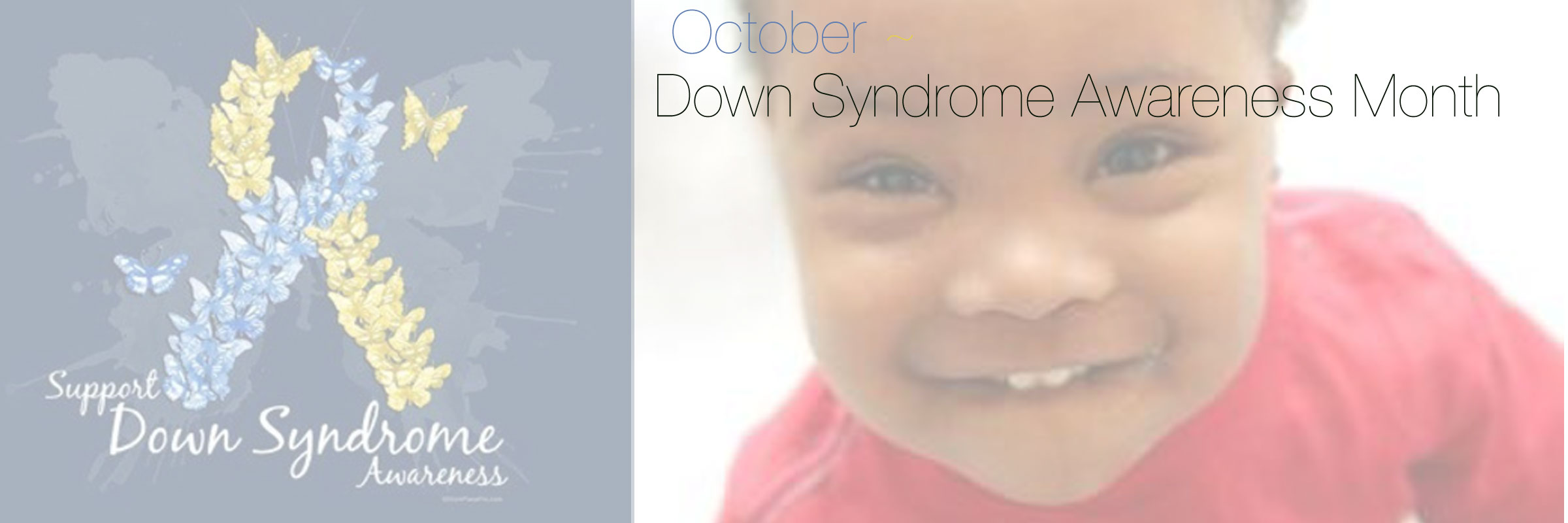 10-down-syndrome